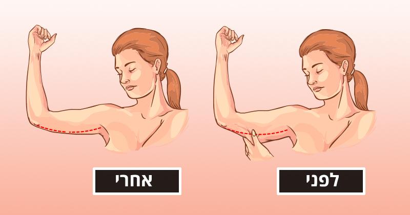 חיטוב הזרועות