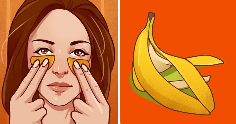קליפות בננה