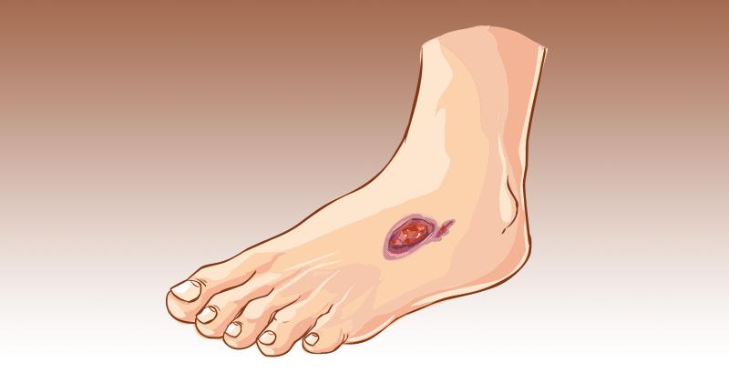 רגל סוכרתית