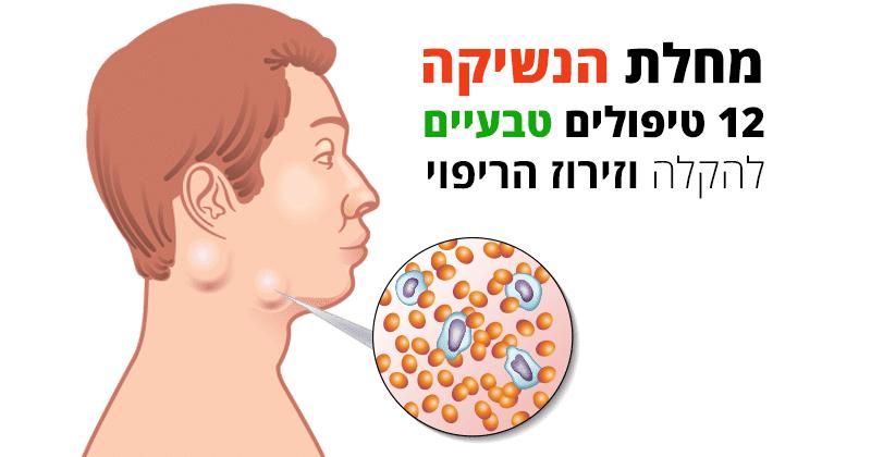 מחלת הנשיקה, טיפולים טבעיים