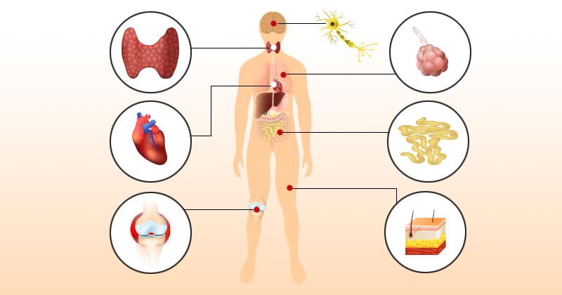 10 סימני אזהרה של מחלה אוטואימונית שאסור להתעלם מהם