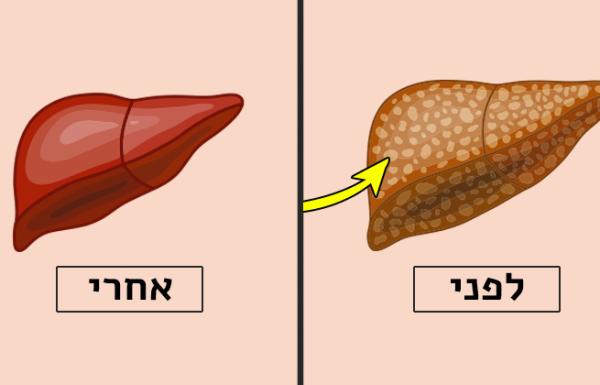 אלומיניום בכבד – כך תנקו אותו, בעזרת 4 מאכלים שכולנו מכירים