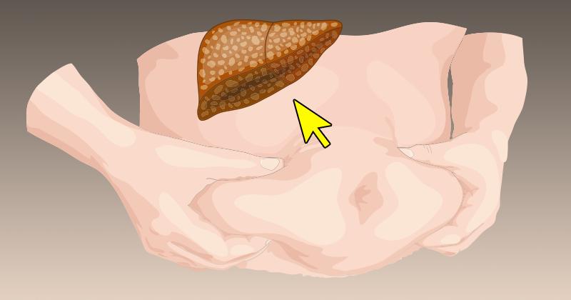 כך תמנעו מאגירת רעלים בתאי השומן, הגורמים לכם להיראות שמנים ונפוחים