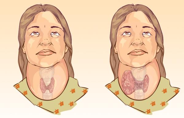 13 תסמינים המצביעים על כך שאולי יש לכם הפרעה בבלוטת התריס