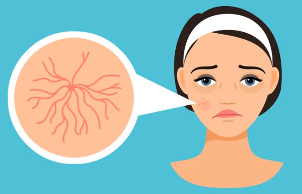 אלה הם הגורמים לנימי דם שבורים על הפנים וכך תטפלו בהם