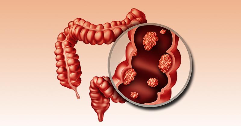 10 סימני אזהרה של סרטן המעי הגס שאסור להתעלם מהם!