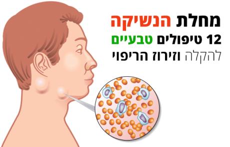 מחלת הנשיקה, 12 טיפולים טבעיים להקלה וזירוז הריפוי