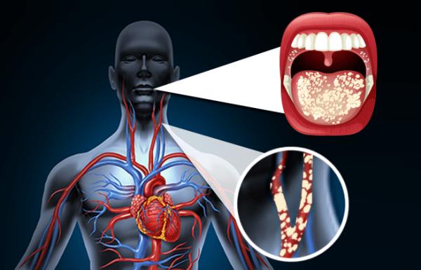 שיניים, היגיינה, מחלות לב ומחקר חדש שחשף את הקשר ביניהן