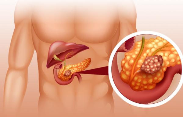 14 המאכלים הגורמים לסרטן שעליכם להפסיק לאכול מיד!