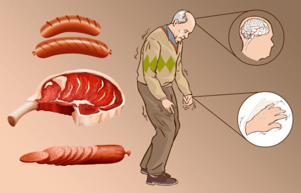 זה מה שקורה לתאי ולמבנה המוח שלכם כשאתם אוכלים בשר במשך 5 שנים
